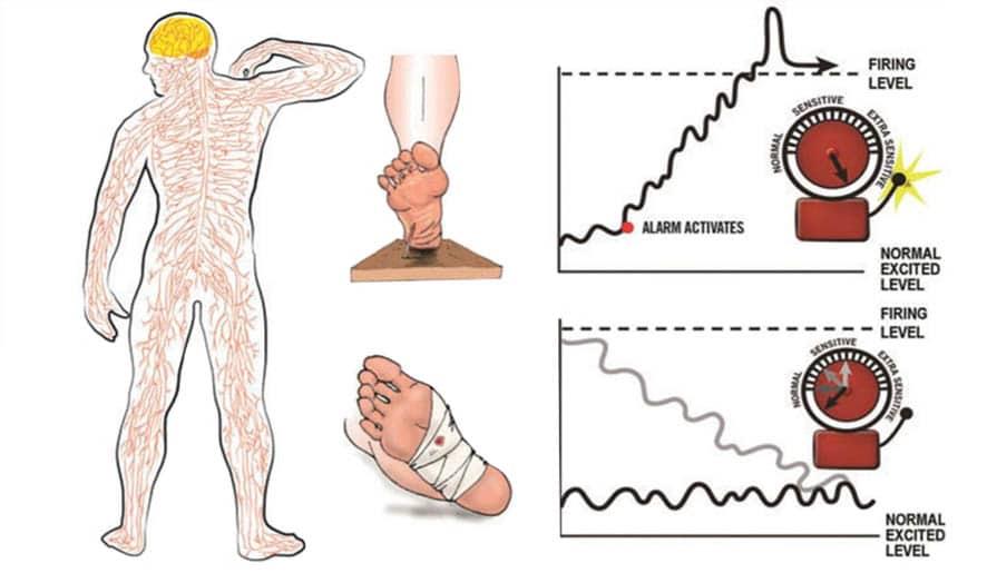 Educação em neurociência da dor